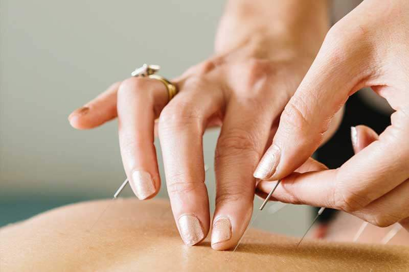Acupuncture Treatment East Bay